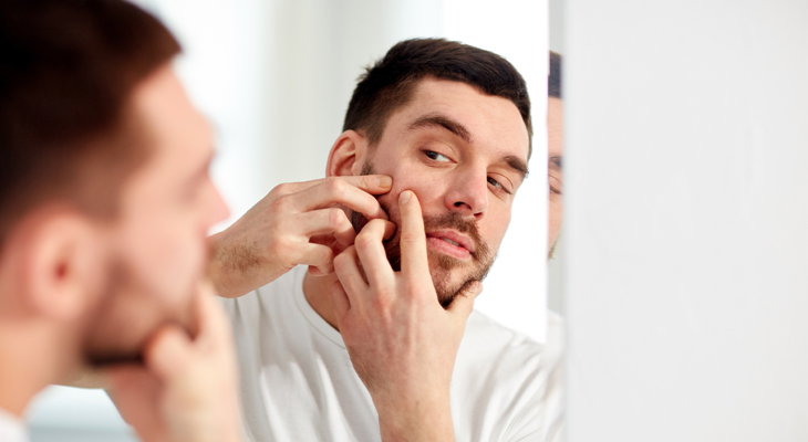 Should I Be Popping Blackheads Reduce Forehead Acne Fast