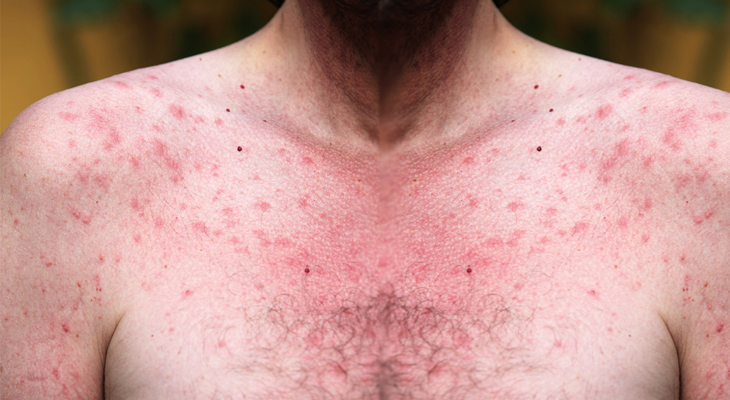 Help For Chest Acne Sufferers Reduce Pimples On Your Chest