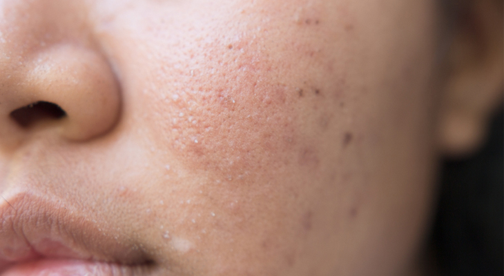 Nodular Acne Understand Treat And Get Rid Of It Today