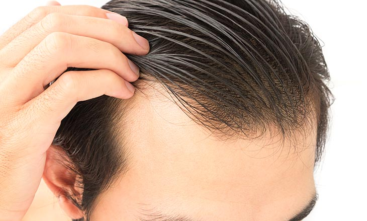 nizoral hair loss