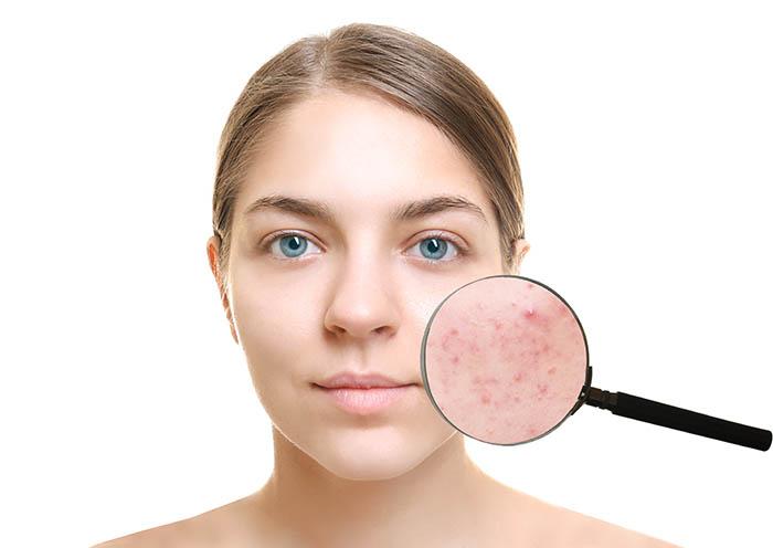 dermaroller acne scars