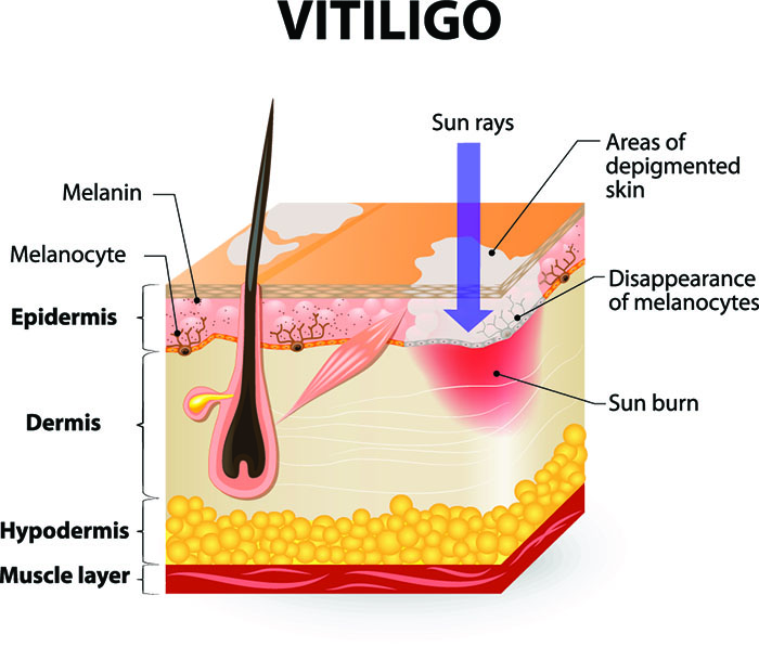 Best Sunscreen For Vitiligo Protect Your Skin Today