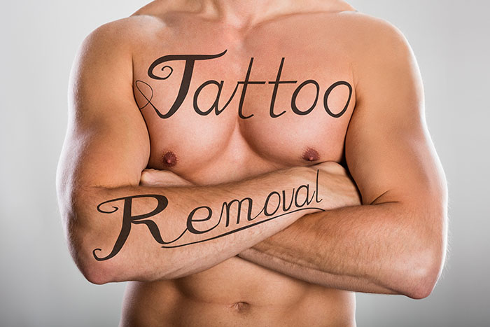 Tattoo Removal Creams That Work: In-Depth Guide