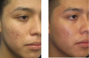 Laser Acne - Before & After